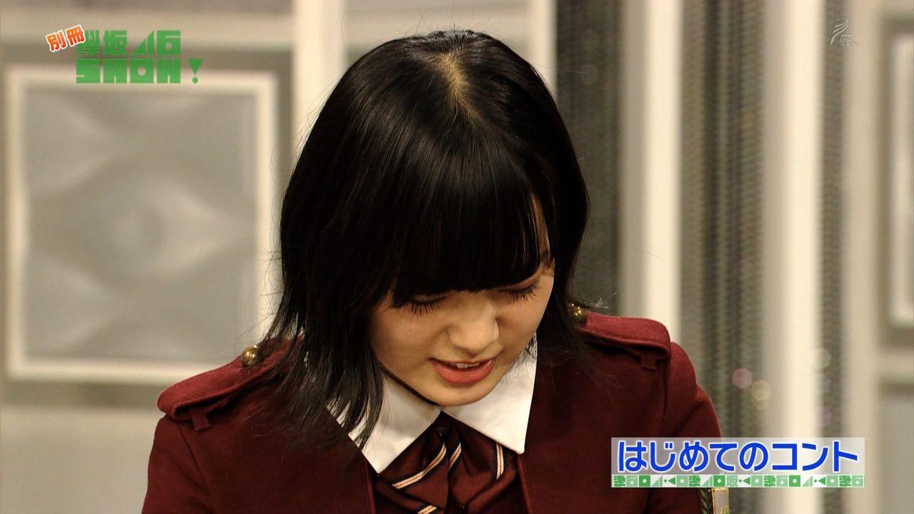 【エンタメ画像】《悲報》欅坂のセンター平手ちゃん、JCなのにハゲる・・・・【画像あり】