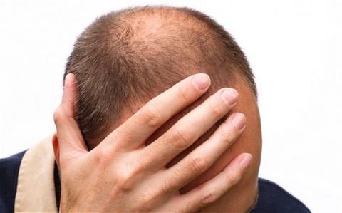 タンポポに発毛効果が!? 抜け毛、薄げに悩む人超必見!! 2ch「良いのか?信じちゃうぞ?」