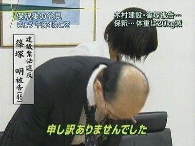 日本のおじさんたちは何故「アデランス」をかぶらなくなったのか。アデランスビジネス崩壊の理由
