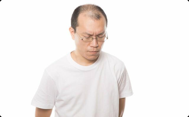 頭髪事情がアレ