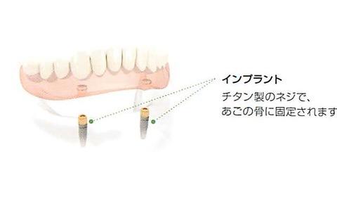 implant ireba