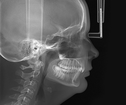 OP-3D_X-ray_LAT-PED-head1_1000px