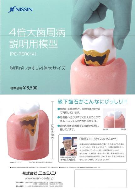 4倍大歯周病説明用模型