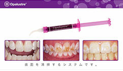 Opalustre-procedure-video_Japan