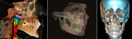 3Dデジタル矯正