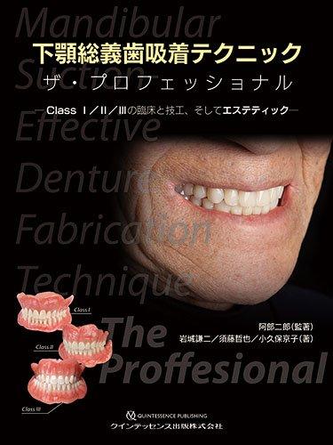 下顎総義歯吸着テクニック ザ・プロフェッショナル
