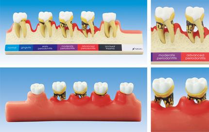 ニッシン歯周病模型