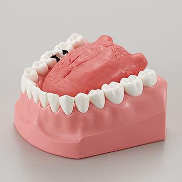舌癌説明用模型