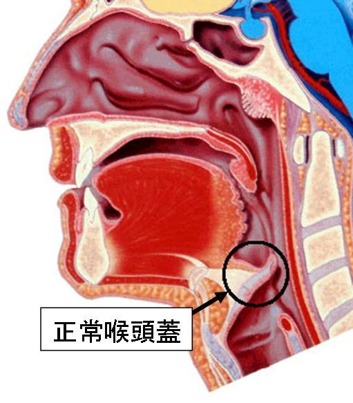嚢胞 喉頭蓋