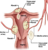 uterinefibroids