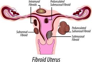 FibroidUterus
