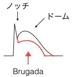 brugada3