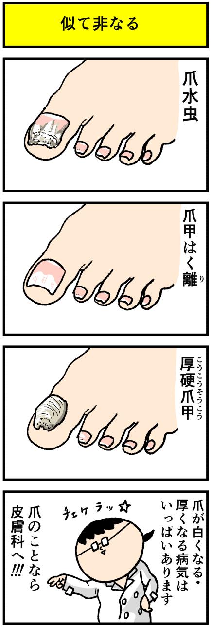 爪が白い病気は爪水虫 他にもあるよ デルマな日常 ちょっと皮膚