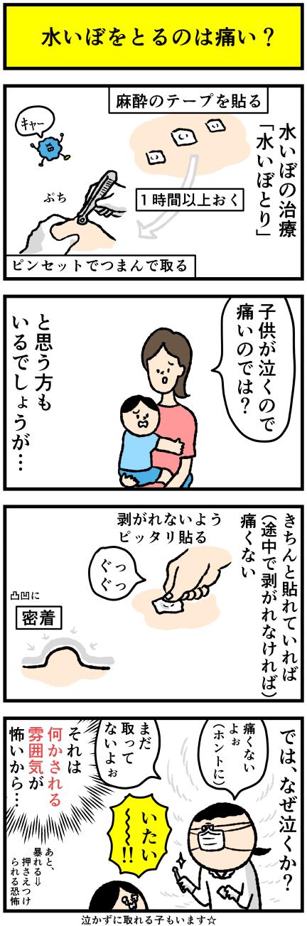 水いぼ 治療 子供