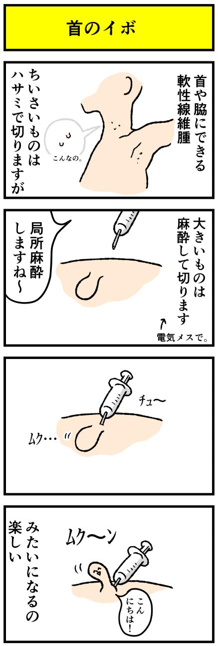 336ibo1