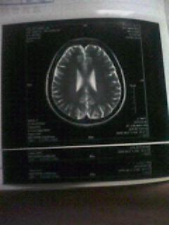 長谷川華脳内体内
