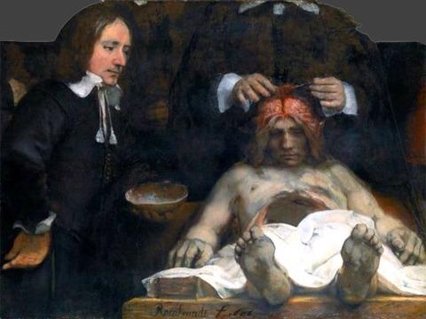 anatomy Lesson Dr. Deijman 1656 Rembrandt van Rijn