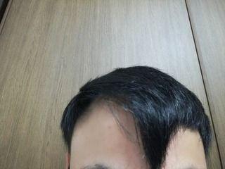 韓国のMOTEN(モテン)で自毛植毛して2年7ヶ月と2週間後の経過写真を公開