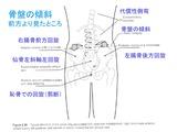 右腸骨の前方回旋
