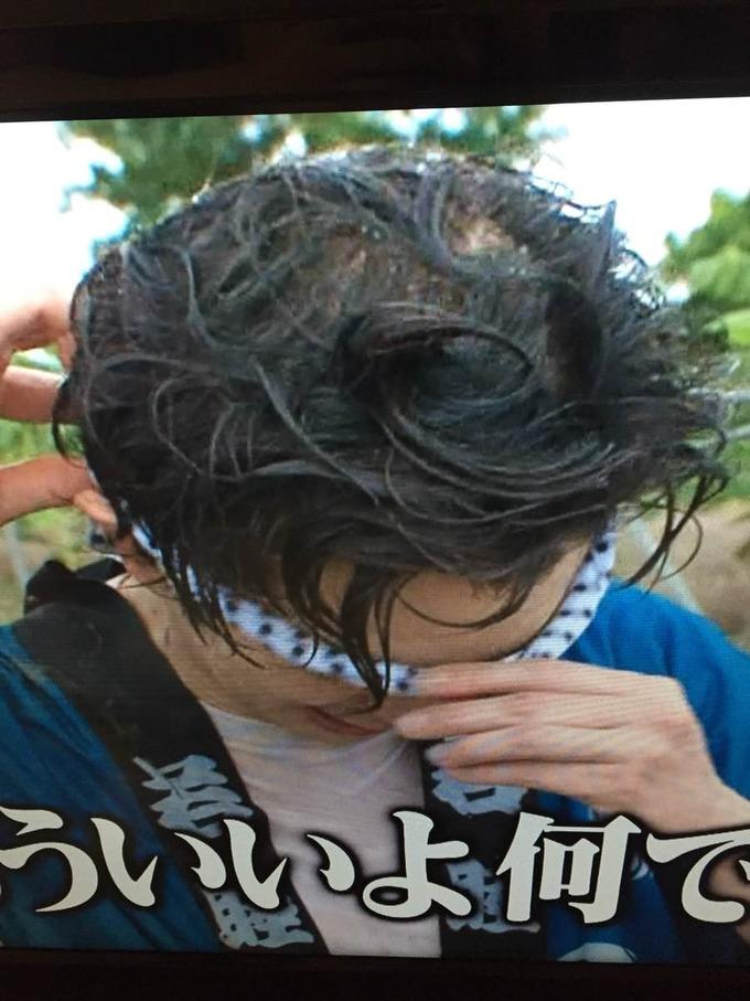 嵐の松本潤さん、ハゲる