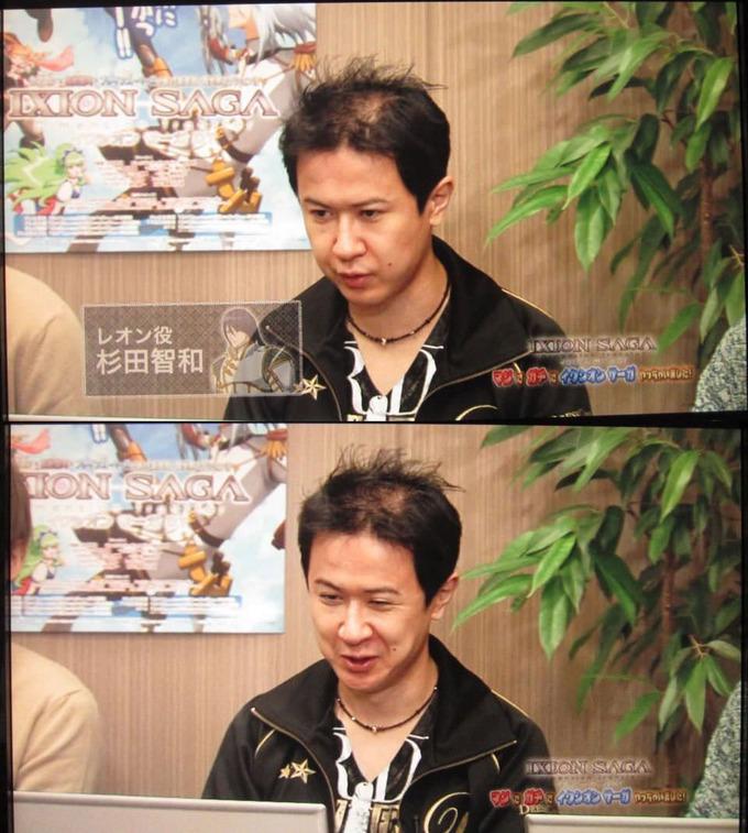 【超朗報】人気声優・杉田智和さん、髪の毛が復活する