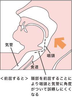 s-咽頭の画