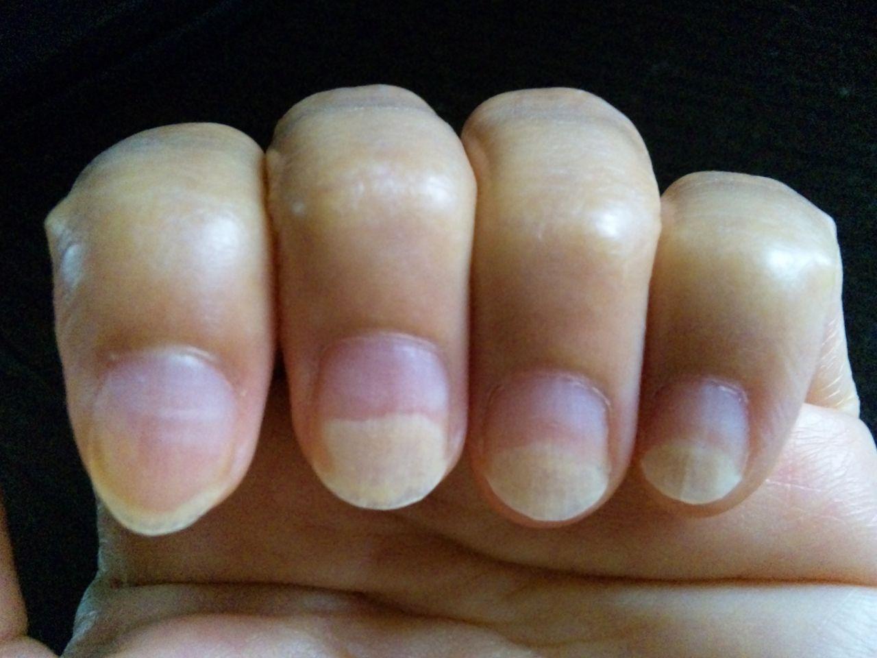 爪の根本にある白い部分がないのは異常?健康状態 …