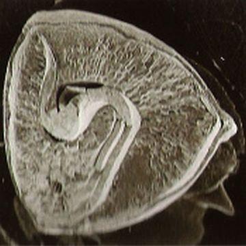蕎麦の実の顕微鏡写真