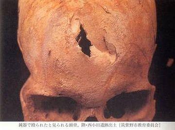 戦争で殺された弥生人の骨