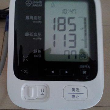 検査前の血圧、200近かったからね