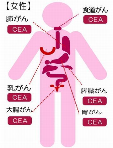 腫瘍マーカーによる、がん検診