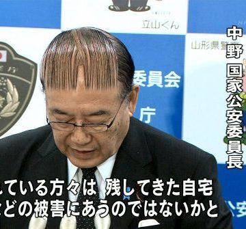 あり得ない日本のハゲ代表