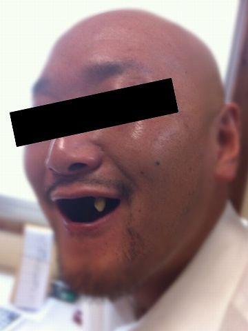 毛もない、歯もないで、二重苦