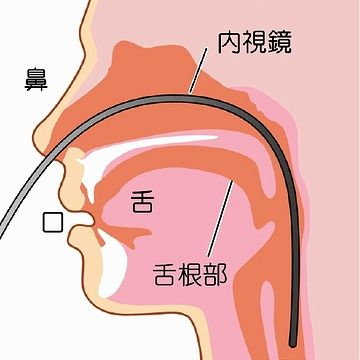 管が舌に触れないので、「オエッ」となりにくい