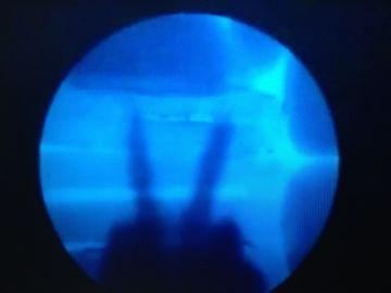 骨のレントゲン写真が、画面に映るんですよね