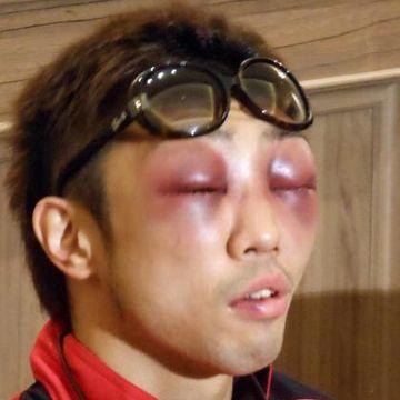 WBAミニマム級王座統一戦で井岡一翔に敗れた八重樫東