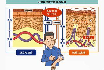 尋常性乾癬って病気は、皮膚の新陳代謝が早くなりすぎる病気なのよ