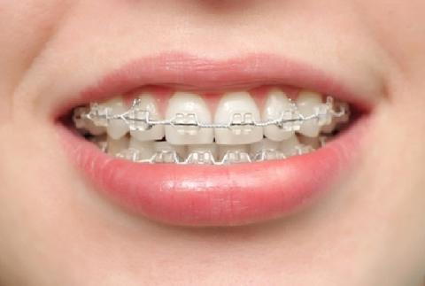 歯列矯正2