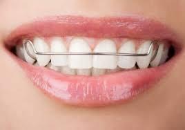 歯列強制3
