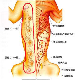 片側乳腺切除