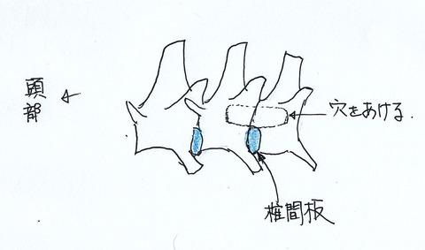 椎間板手術