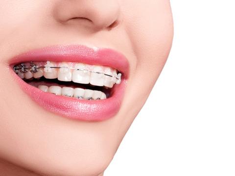 orthodontics_1