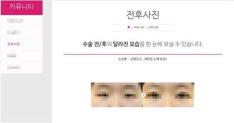 【日韓】日本の女子高生、自身の二重まぶた手術写真を無断で盗用した韓国の整形病院を告訴