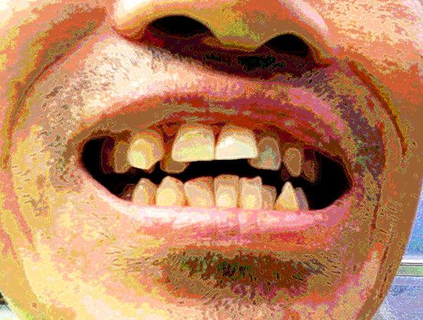 20170809歯