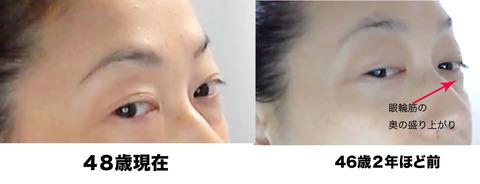 48歳目のくぼみ比較