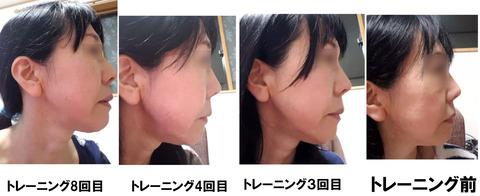 白石様横顔改善例1〜8