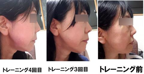 白石様横顔改善例1〜3ぼかし
