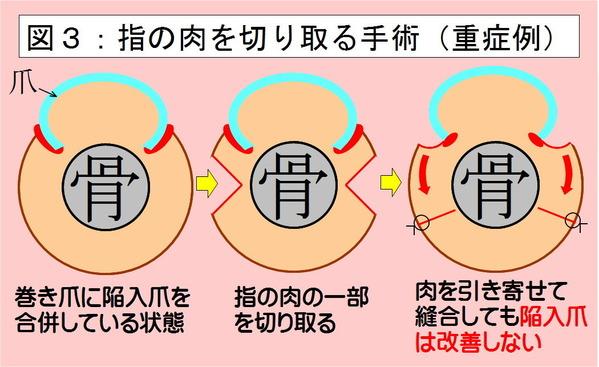 指の肉を切り取る手術1-3