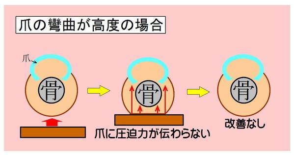 巻き爪-02