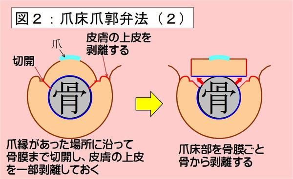 爪床爪郭弁法-02